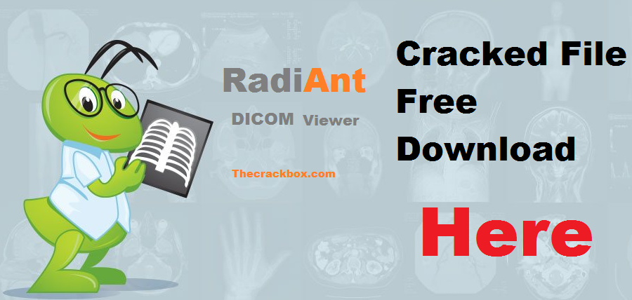 RadiAnt DICOM Viewer Crack