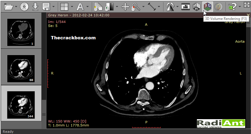 RadiAnt DICOM Viewer Keygen